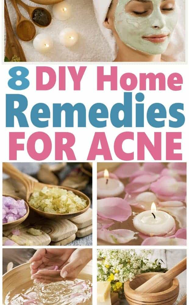 Stop putting up with embarrassing acne or buying expensive drugstore acne treatments that just don't work. Here are 8 DIY Home Remedies for Acne that'll have you looking gorgeous in no time and they'll save you money too!! DIY Beauty | DIY Acne Treatment #beauty #DIYBeauty
