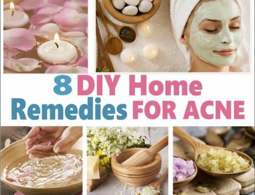 DIY 8 Home Remedies For Acne
