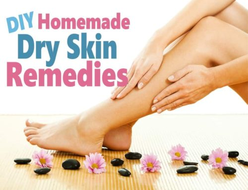 Homemade Dry Skin Remedies